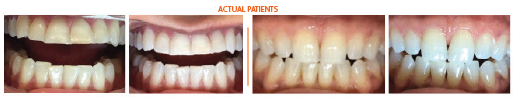 Teeth Whitening - Actual Patient Results