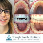 Jaymee - Cosmetic Dentistry Results