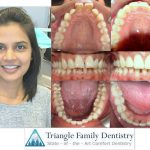 Cosmetic Dentistry Results - Moorisville NC