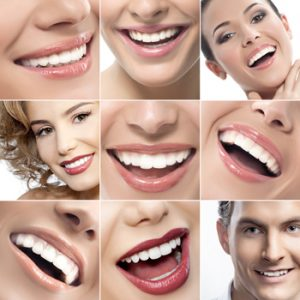 NC Dentist - Teeth Whitening