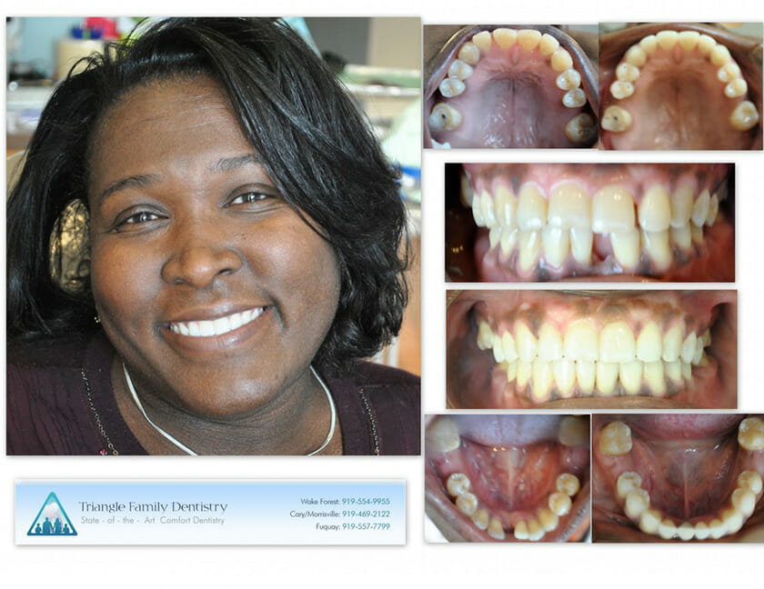 Loranda-invisalign-implant-1140x880