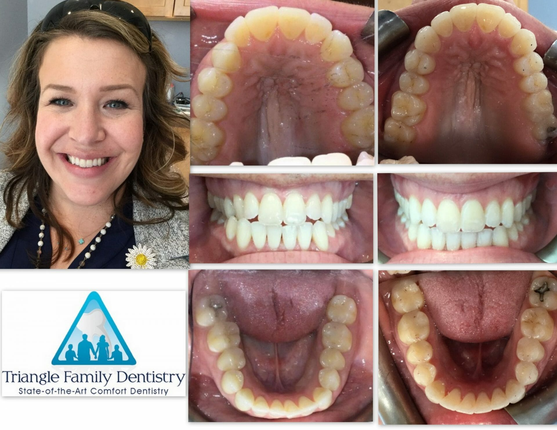 a-m-invisalign-dental-office-cosmetic-dentist-triangle-family-dentistry-scaled