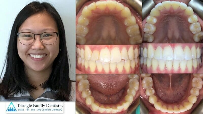 adult-braces-invisalign-cosmetic-dentistry-triangle-family-dentistry-Feb2021