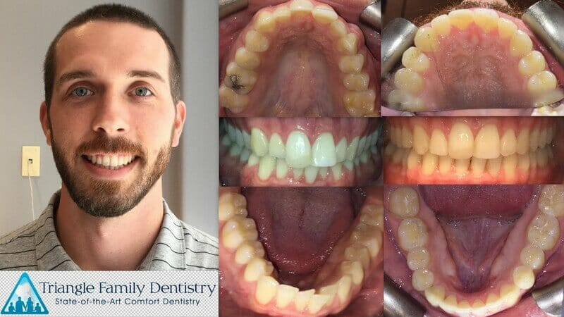 clear-adult-braces-invisalign-cosmetic-dentist-triangle-family-dentistry-Feb2021