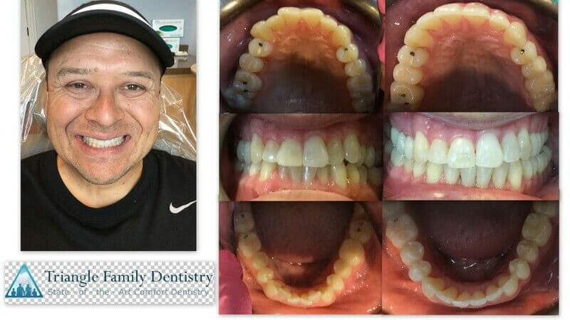 cosmetic-dentist-triangle-family-dentistry-cary-park-nc-apex-Feb2021