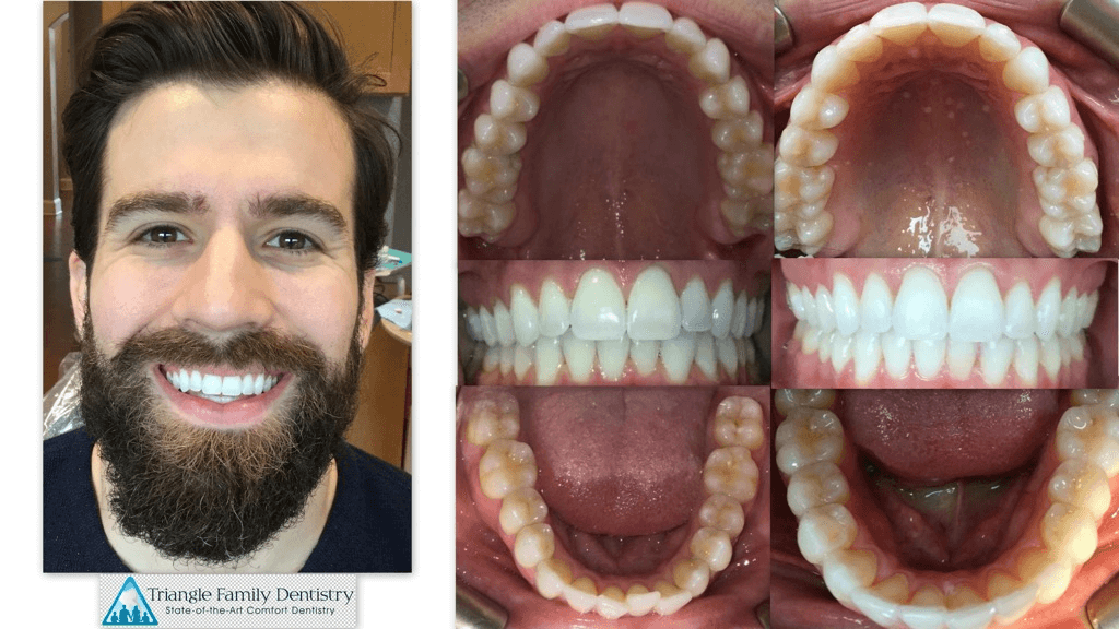 cosmetic-dentistry-before-after_p-hennessy