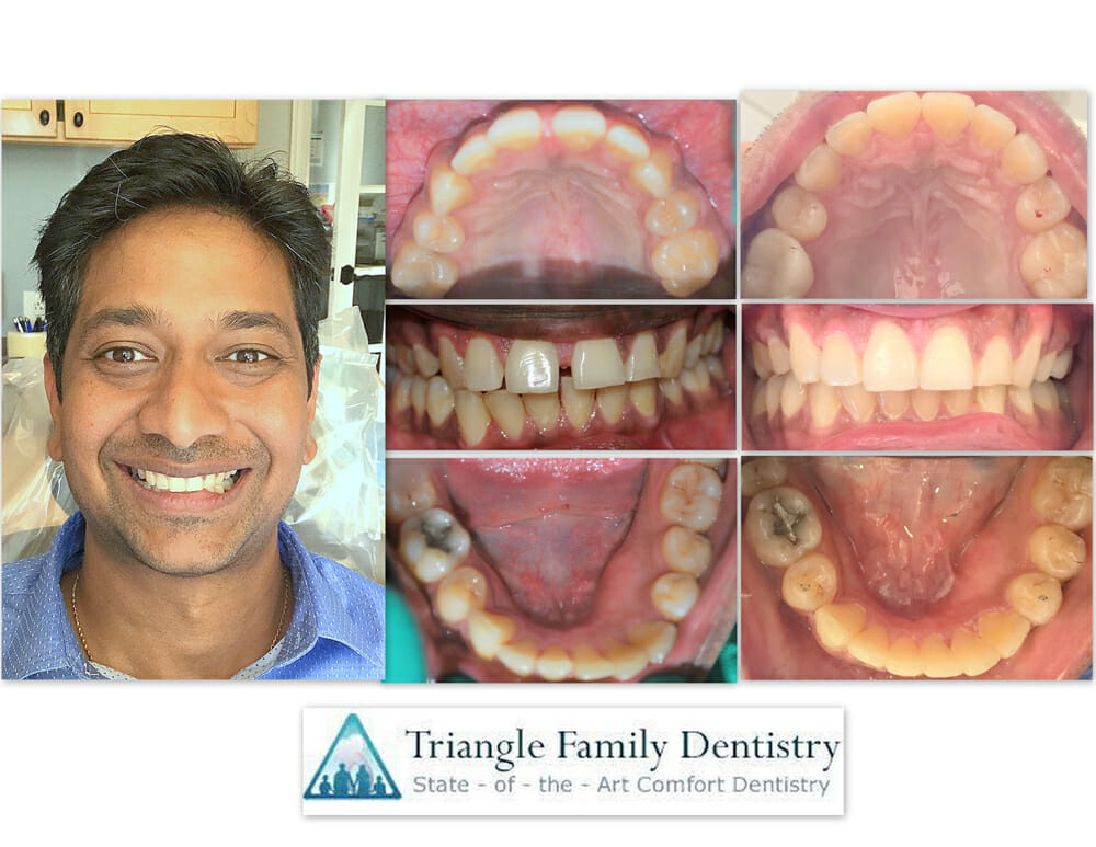 cosmetic-dentistry-morrisville-nc-wake-forest-dental-office-smile-gallery-Jun2017