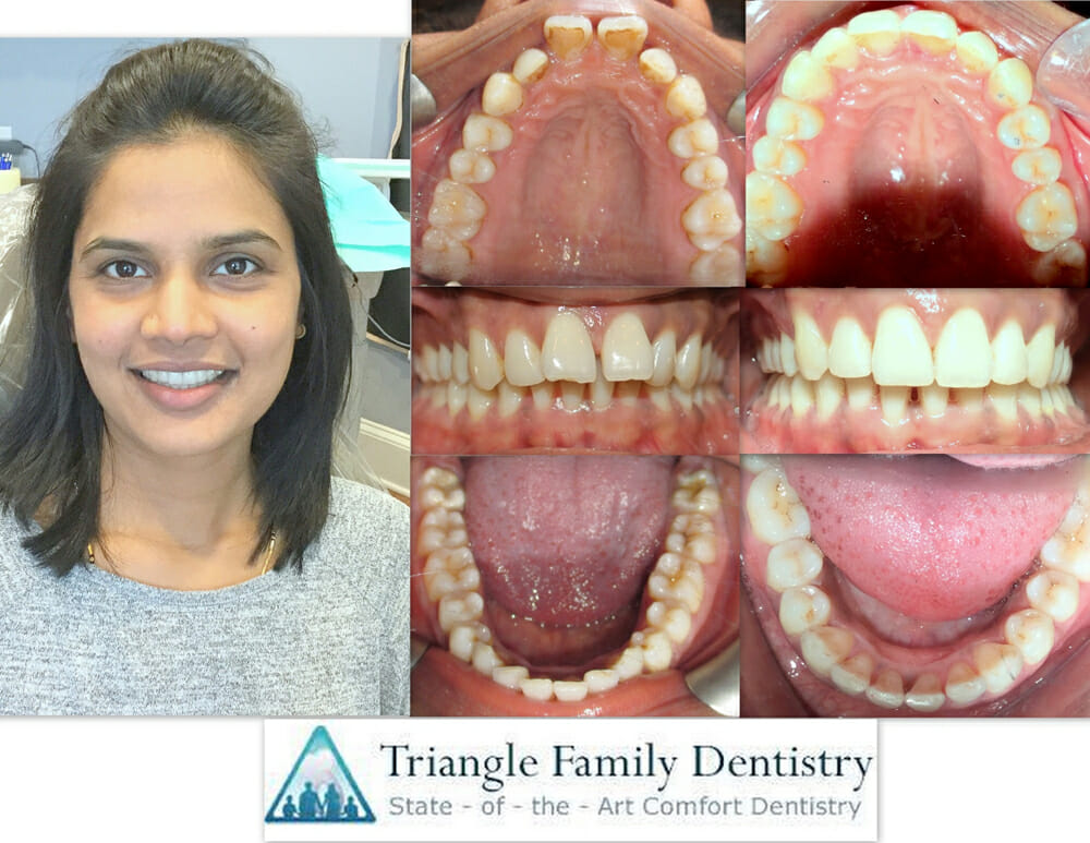 cosmetic-dentistry-triangle-family-dentist-Gregory