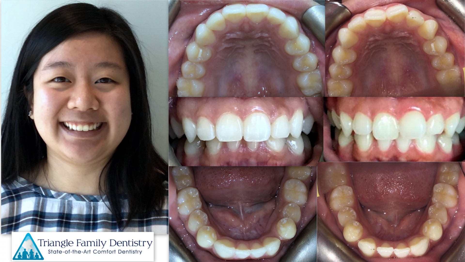 dental-office-invisalign-beautiful-smiles-raleigh-nc