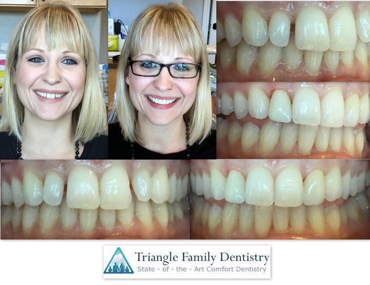dental-veneers-morrisville-nc-dental-office-1
