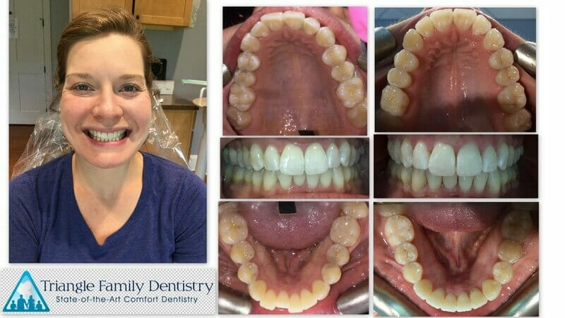 dentist-morrisville-nc-cosmetic-dentistry-triangle-family-dentistry-Feb2021