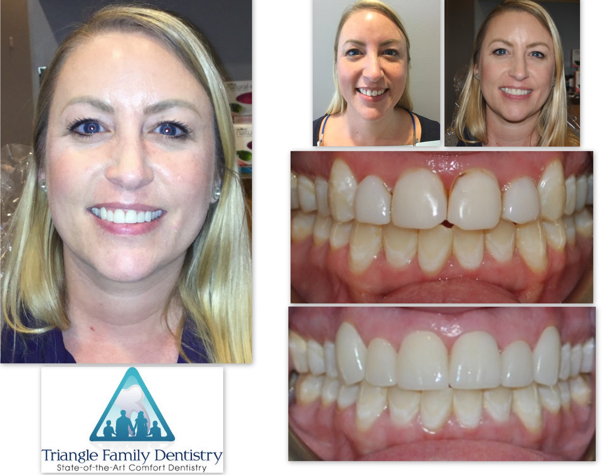 dentist-office-veneers-cosmetic-dentistry-wake-forest-north-carolina