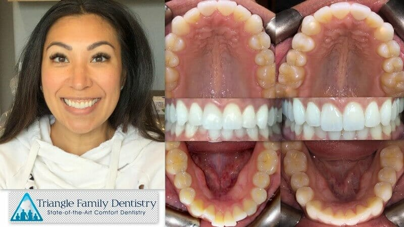 invisalign-cosmetic-dentist-wake-forest-nc-triangle-family-dentistry-Feb2021