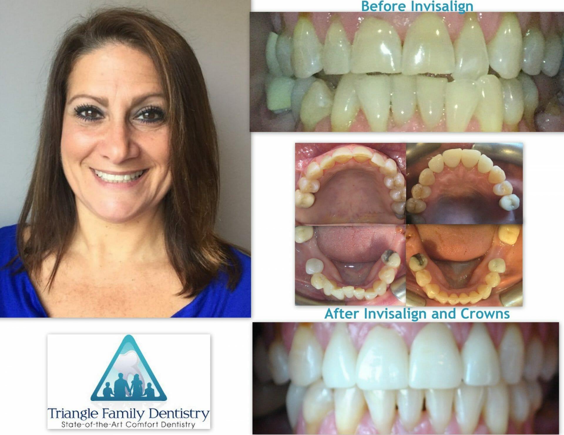 morrisville-dentist-invisalign-before-after-Sep2019