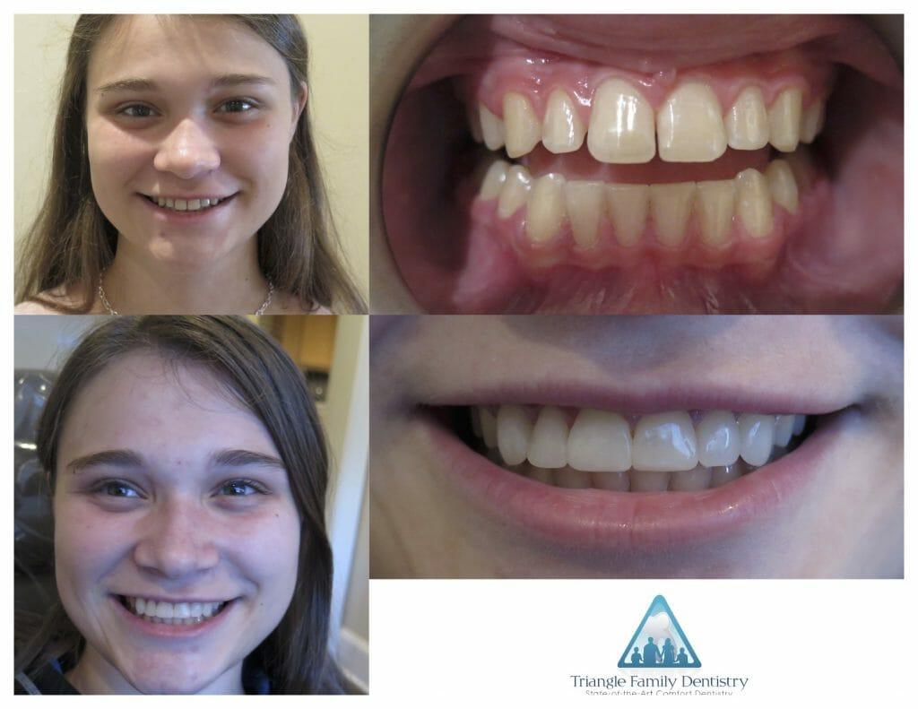 morrisville-dentist-invisalign-dental-veneers-Pt88