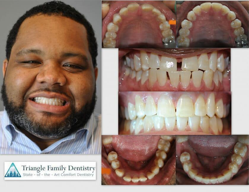 triangle-family-dentistry-Gregory-Kearnan-1140x880