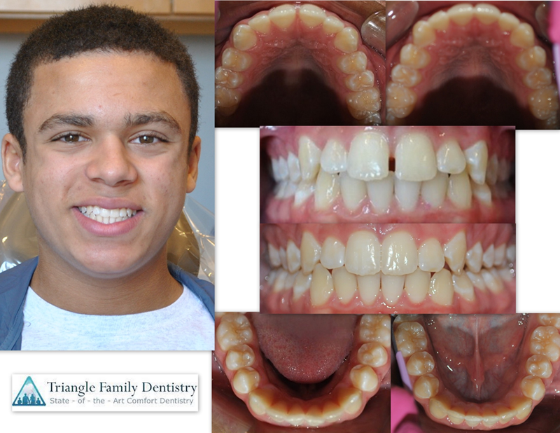 wake-forest-cosmetic-dentistry-family-dental-office1