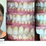 cosmetic dentistry - smile transformation - Triangle Family Dentistry