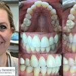 Invisalign - Cosmetic Dentist - Triangle Family Dentistry